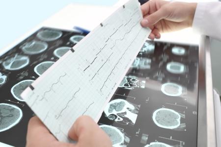 研究心電圖和斷層掃描