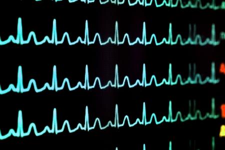 sismogr�fo: Pantalla con el cardiograma Foto de archivo