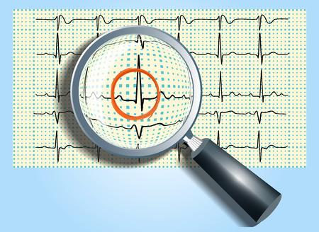 heart ecg trace: Magnifying glass and cardiogram