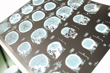 醫學CT掃描患者的神經系統 版權商用圖片
