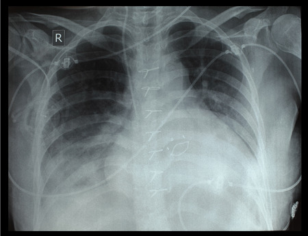 Chest x-ray of the patient after surgery  photo