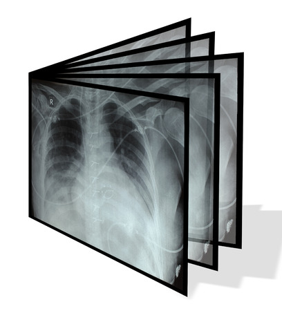 Collage from chest X-rays. Isolated on white  photo