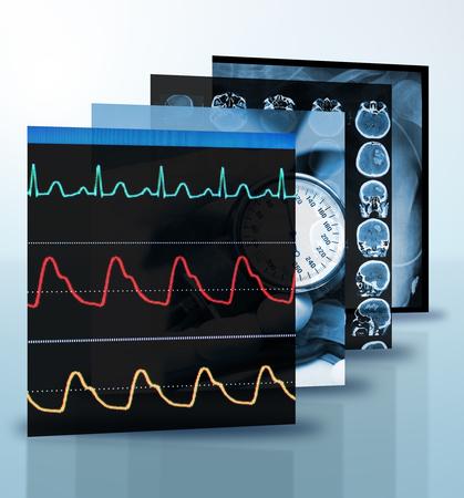 ray trace: Collage de fotos de medicina sobre el tema del diagn�stico, la investigaci�n m�dica