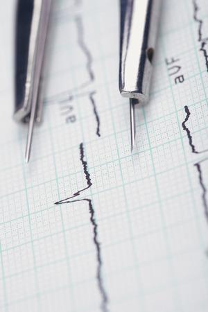 ECG analysis. Compasses on medical cardiogram  photo