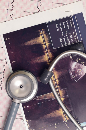 Stethoscope and medical records  photo