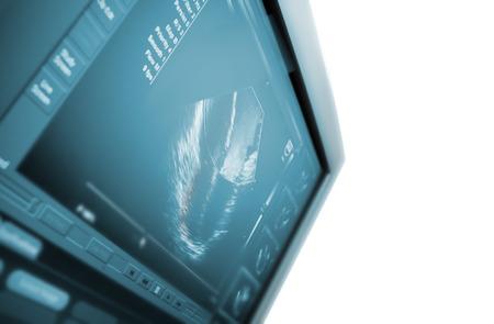 Ultrasound machine  isolated on white photo
