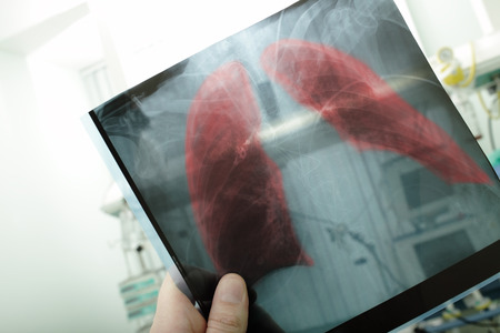 indore: Pneumonia on x-ray picture  Stock Photo