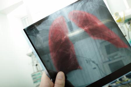 pneumonia: Pneumonia on x-ray picture  Stock Photo