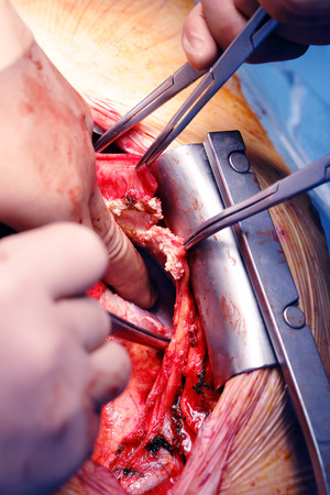 Cardiac surgery at armored heart photo