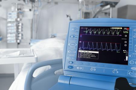 electrocardiograma: Sala de la UCI y el monitor cardiovascular Foto de archivo