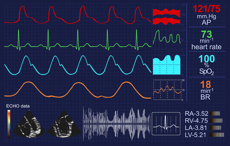echo: Heartbeat monitor with lots of curves and other data
