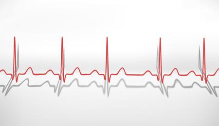 Heartbeat ECG  Volumetric concept photo