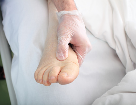 pies masculinos: médico examina a pie del paciente pesado con edema
