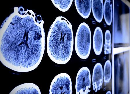 cerebral: CT x-ray  Stock Photo