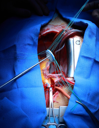 human cardiovascular system: Valve implantation in the human heart  Stock Photo