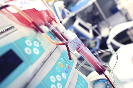 anemia: Blood transfusion in the ICU
