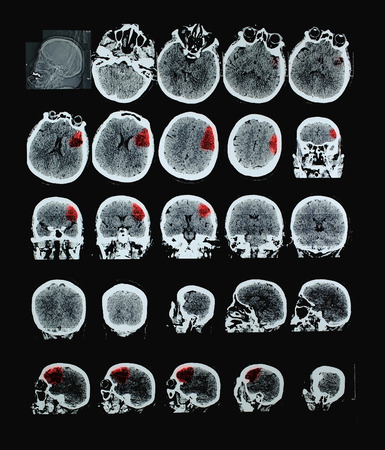 ct scan: Ischemic stroke of human brain CT. With red shows the affected area. Perhaps the professional use of pictures  Stock Photo