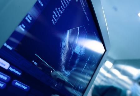feto: Corazón en la pantalla de la máquina de ultrasonido