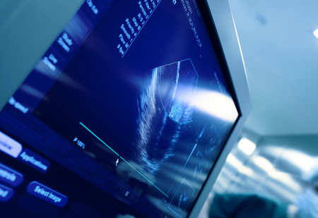 Hart op het scherm van de echografie-machine