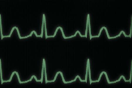 oscillate: Glowing electrocardiogram line
