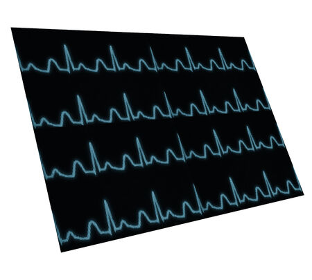 taking pulse: Screen with pulse wave located in space. Isolated. Element for your work