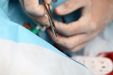 emergency room: Doctor sews Stock Photo