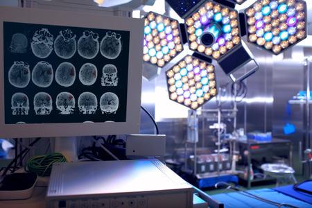 emergencia medica: Tomograma del paciente en la sala de operaciones de neurocirugía