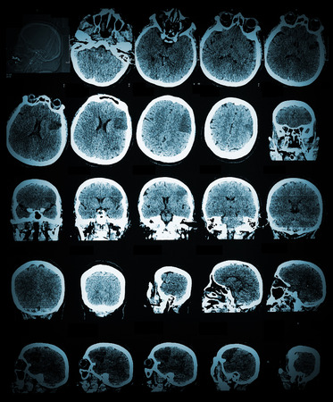 sclerosis: Healthcare and medical wallpaper with the CT scannimage