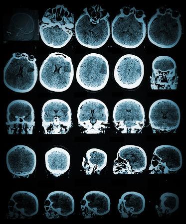 CT 스캔 이미지가있는 건강 관리 및 의료용 벽지