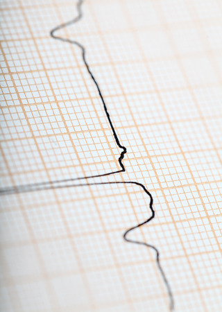 sinus: Traces ECG sinus rhythm isolated makrofoto