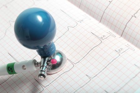 electrode: Electrode and ECG chart closeup