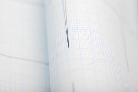sismogr�fo: Gr�fico de cerca antecedentes m�dicos Foto de archivo