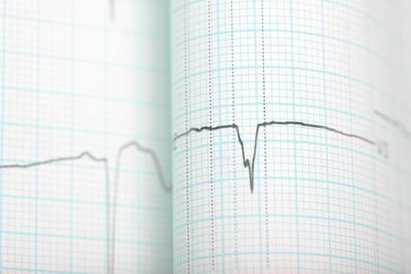 throb: ECG graph medical background