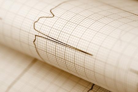 sismogr�fo: Papel ECG antecedentes m�dicos
