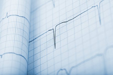 sismogr�fo: Fondo EKG en monocromo