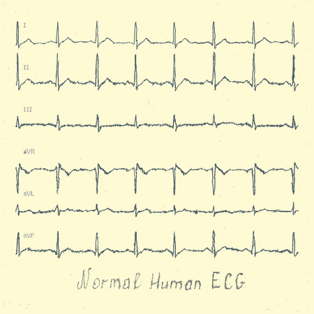 heart ekg trace: Normal human ECG hand-drawn vector Illustration