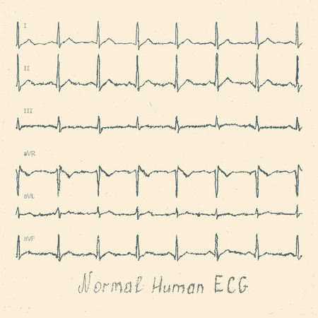 heart ecg trace: Normal human ECG hand-drawn Stock Photo
