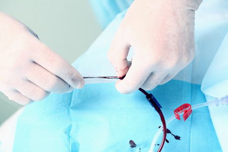 catheter: Blood catheter fixed by doctor Stock Photo