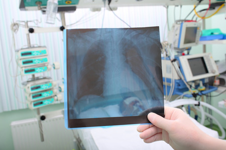 surgical oncology: X-ray picture in the hands of a doctor on the background of the patients bedside Stock Photo