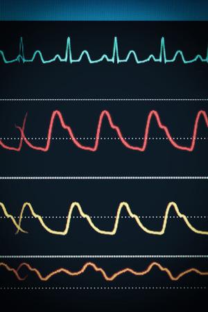 bp: ECG chart on the monitor around the clock surveillance