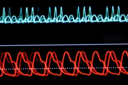 blood pressure monitor: ECG graph on the monitor pixelated Stock Photo