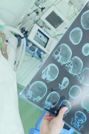 scull: Doctor examining CT scan of patient in ICU ward