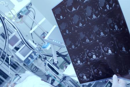 estudiantes medicina: M�dico considerando TC del paciente pesada en el hospital;