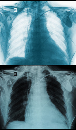chest xray: Chest X-ray picture negative positive