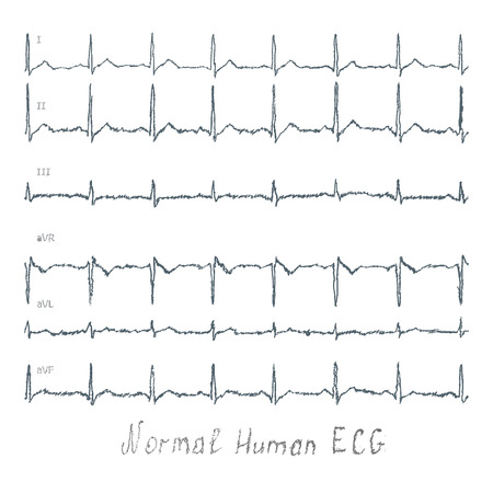 listening to heartbeat: Normal healthy human illustration of ECG