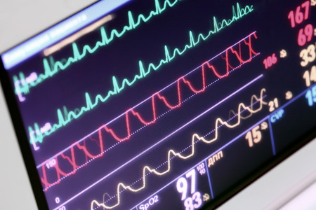 Monitoring of the patient in the intensive care