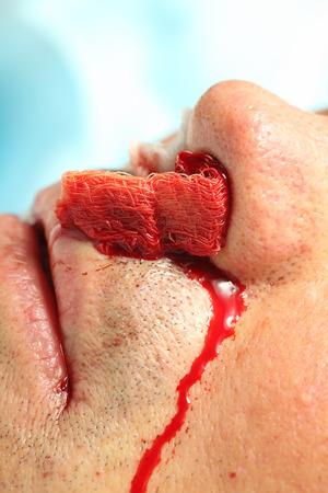 hospital patient: Nasal bleeding patient in hospital. Stock Photo