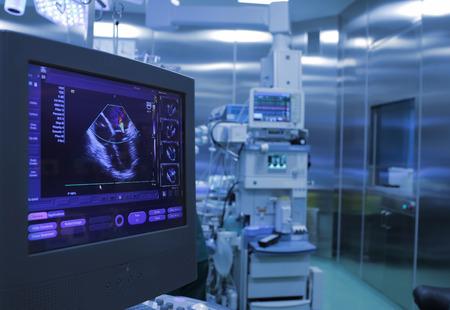 ヘルスケア: 超音波の手術室での手術中に心臓の監視