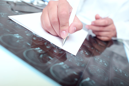 radiotherapy: Doctor wrote on a paper examining the tomography scan of the patient