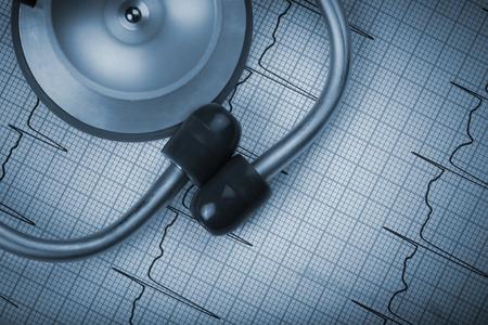 urgencias medicas: Estetoscopio sobre un fondo de un concepto electrocardiograma Foto de archivo